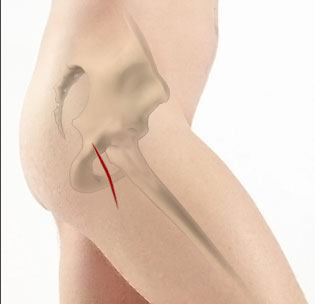 Mini-Posterior Hip Replacement